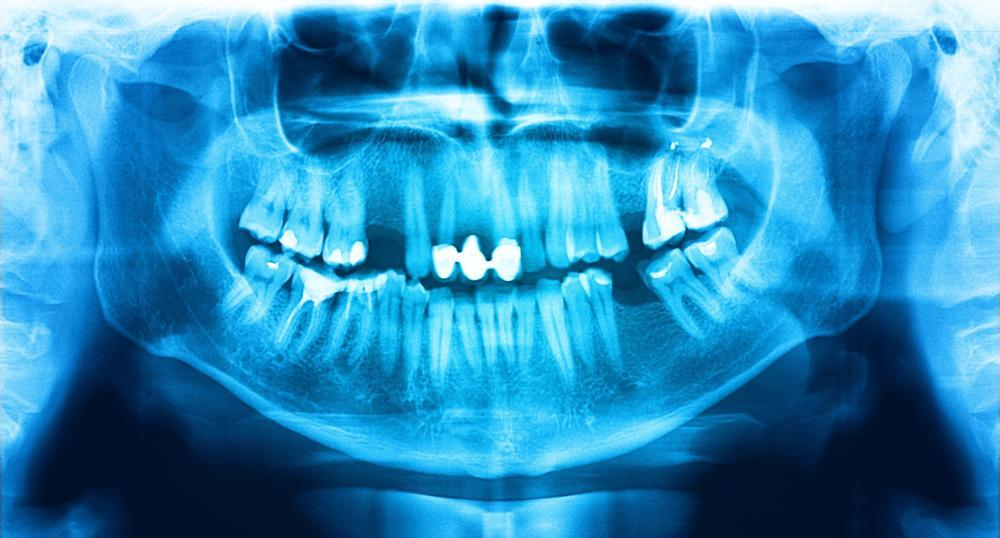 Digital x-ray from dental exam and cleaning in Greeley CO