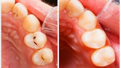 Teeth with cavities before and after dental fillings in Greeley CO